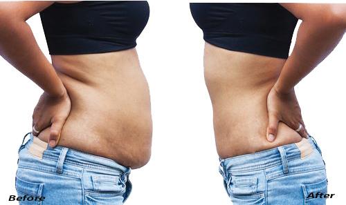 Belly fat pics