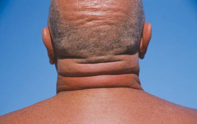 fat neck