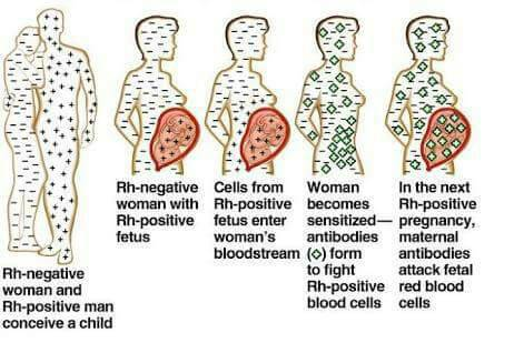 Your spontaneous miscarriages might be as a result of Rhesus factor